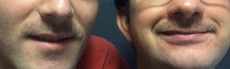 Decitre soutient Movember